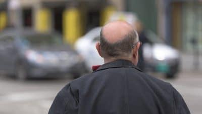 Aux alentours de 2000 euros pour une greffe de cheveux en Turquie